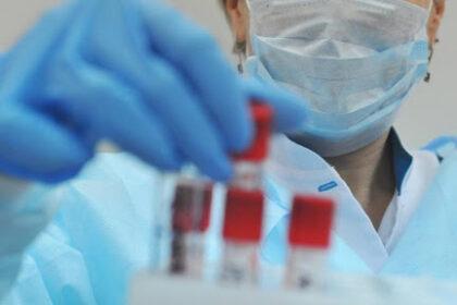 В Узбекистане в минувшие сутки выявлено 406 новых случаев инфицирования коронавирусной инфекцией